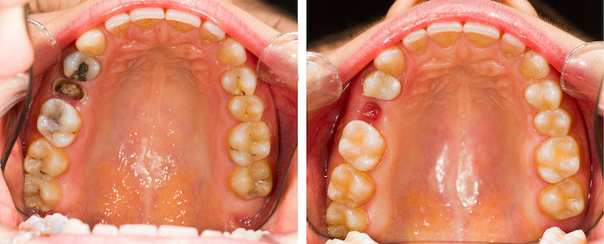 tooth extraction  u00bb orion u0026 39 s dental